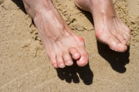 Possible Causes of Hammertoes