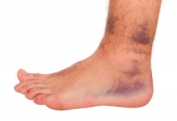 Ankle Sprains and Their Symptoms