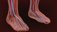 Noninvasive Vascular Tests in Podiatry