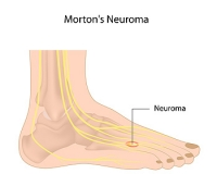 What Are the Symptoms of Morton's Neuroma?