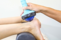 Treating Plantar Fasciitis with Shockwave Therapy