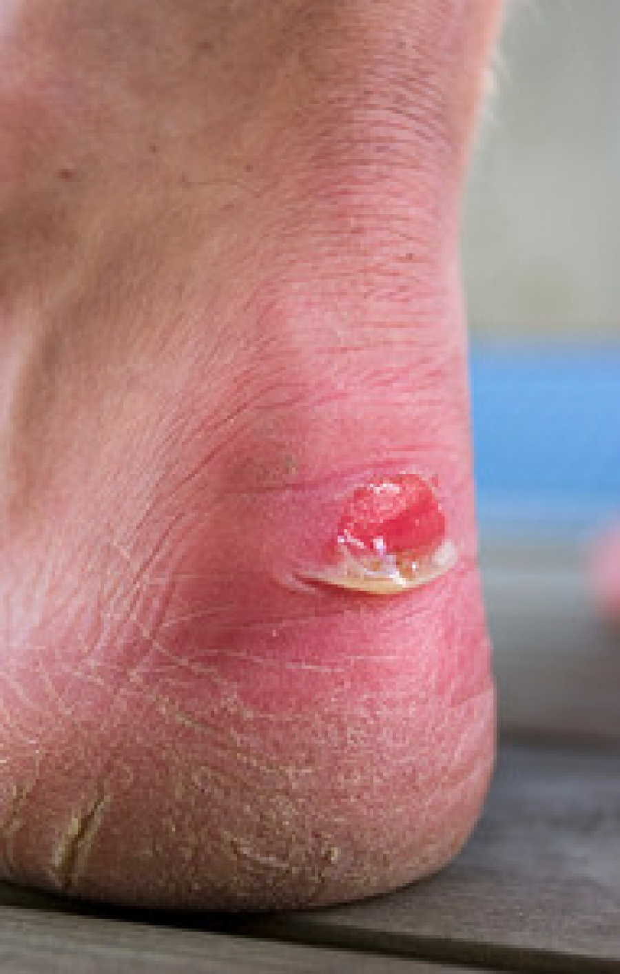 Causes Of Blisters
